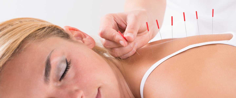 Akupunktur Ağrıların Geçmesini Sağlar